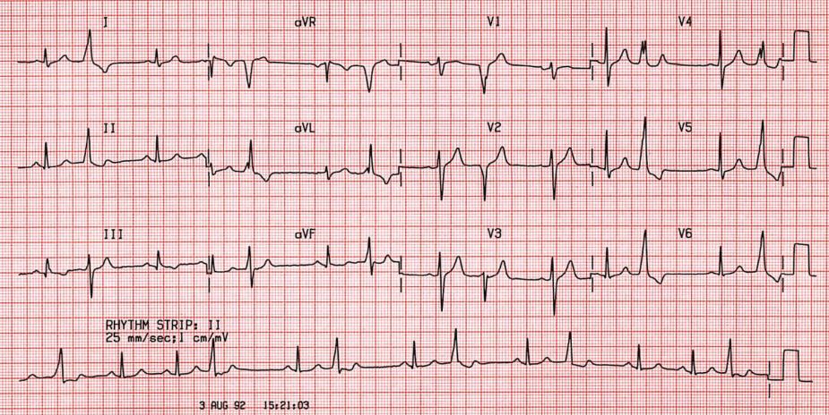 ECG  Ventricular Premature Beats