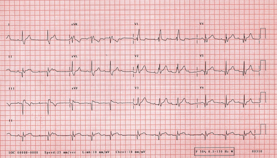 Right Bundle Branch Block With The Wenckebach Phenomenon in Acute Myocardial Infarction.