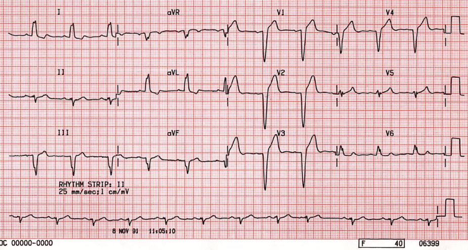 ECG Left Bundle Branch Block (LBBB)