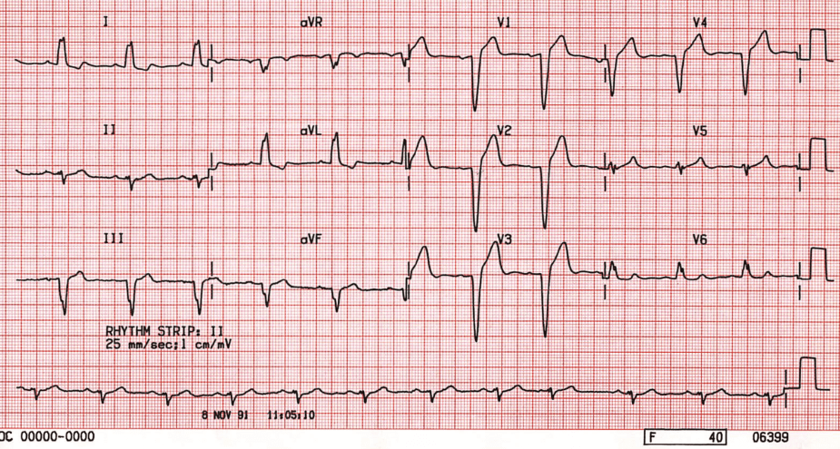 ECG Left Bundle Branch Block