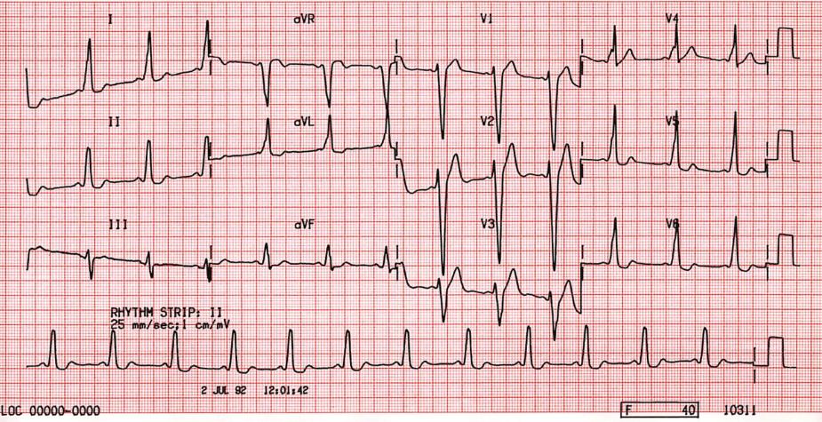 ECG Wolff Parkinson White (WPW) Syndrome Type B