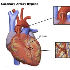 Diagram Of A Heart Bypass Graft 2002 Bmw E46 Radio Wiring How To Plan For Surgery