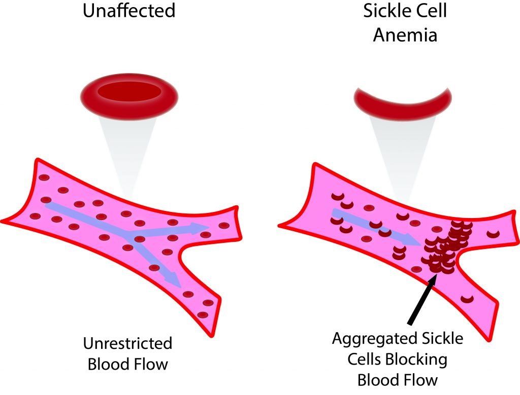 Sickle Cell Disease Sickle Cell Anemia