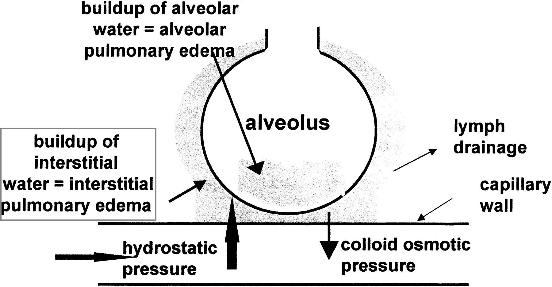 Condition Specific Radiology: Interstitial Pulmonary Edema