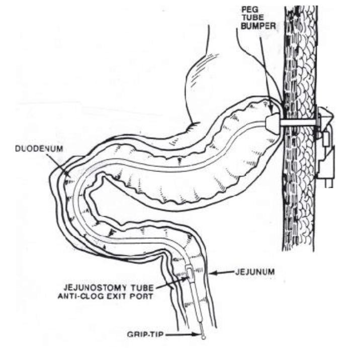 Interventional Radiology Equipment: Transgastric J-Tubes