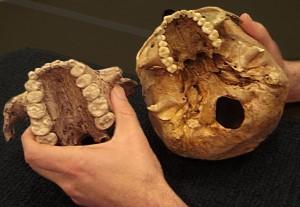 Bovenkaak van P. boisei (links) en een moderne mens
