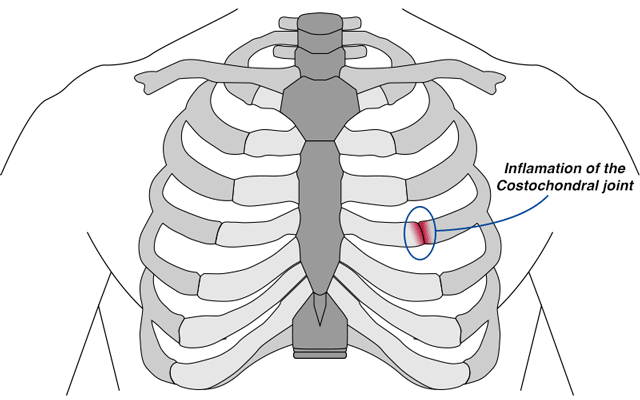 diagram of inflamation of the costochondral joint