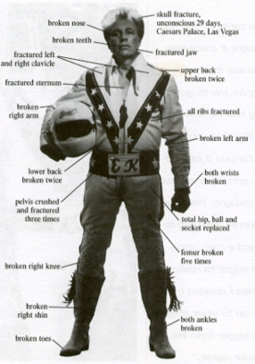 Guide to Evel Knievels Injuries