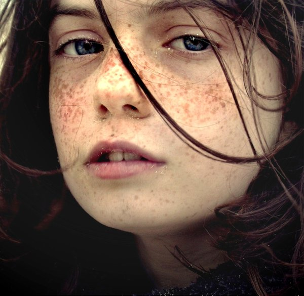 30 Charming Photographs Of Freckles Blog