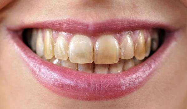 Waarom verschijnen vlekken op tanden?