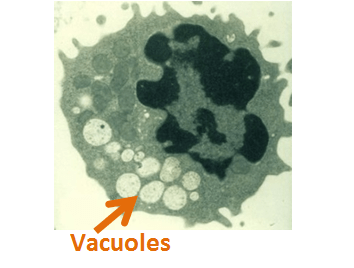 Inclusion Vacuoles I Cell Disease