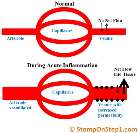 Venule Permeability Vasodilation Arteriole Dilation Acute Inflammation