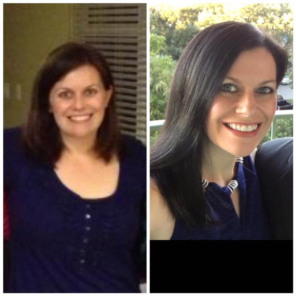 Hypothyroid in photos-Before and After - Stop The Thyroid ...