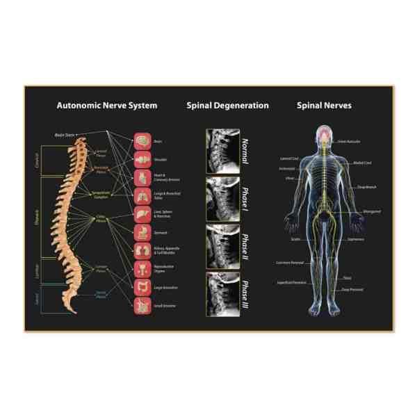 1343. Poster - Spinal Assortment Justus Chiropractic