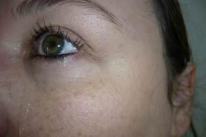 Träne Auge Weinen