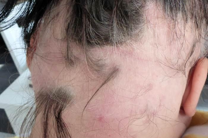 Haar-Update-April-Nacken-Haarausfall
