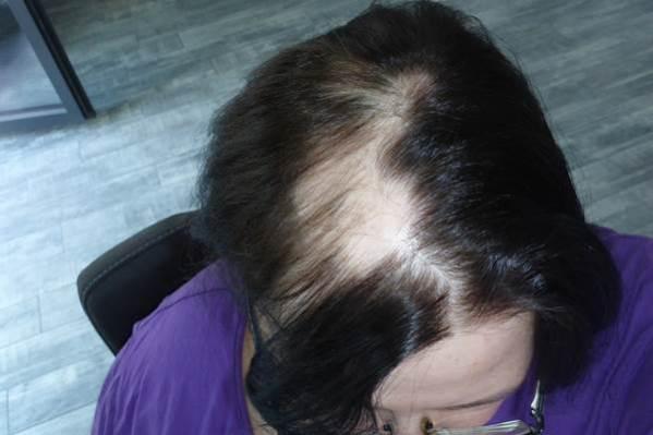 Haare Juli kreisrunder Haarausfall Update
