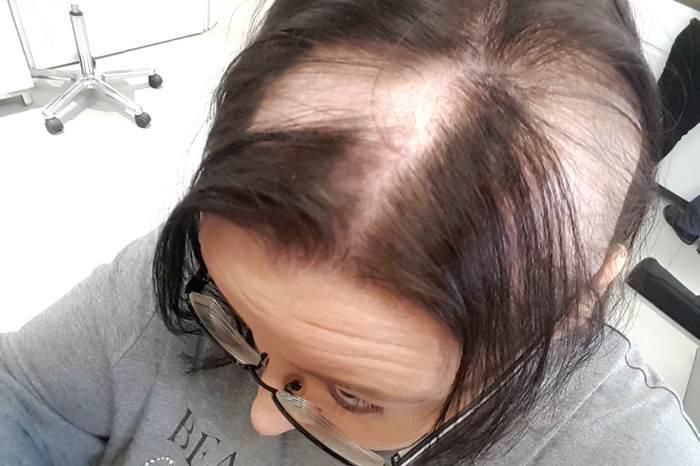 tritec-hair haarersatz