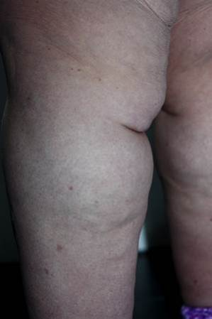 Lipödem-was-ist-das-überhaupt Diagnose Lipedema