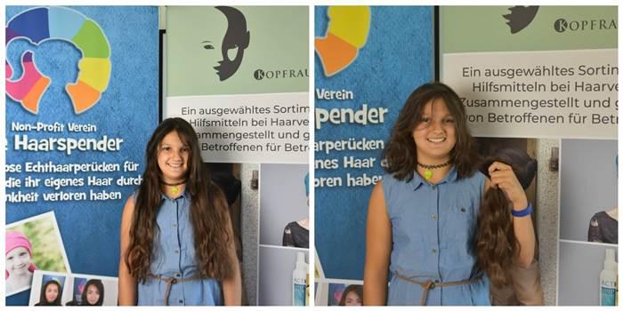 Kopfrausch-Label-Alopecia areata-Katrin-Romina