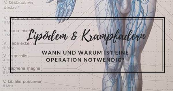 Krampfadern-Lipödem-Operation-nötig