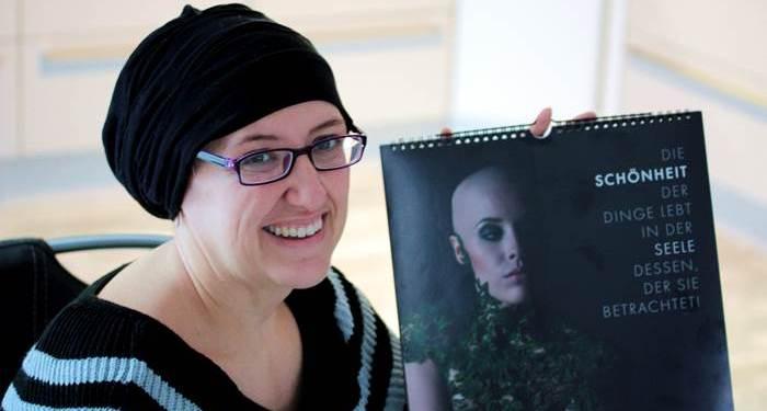 Alopecia Charity Kalender-12 Gesichter! 12 Geschichten-kreisrunder Haarausfall