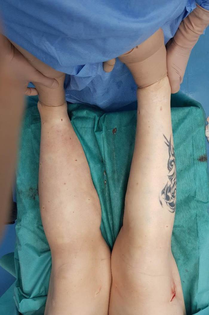 Liposuktion bei Lipödem Dr. Witte LipoClinic Dr. Heck