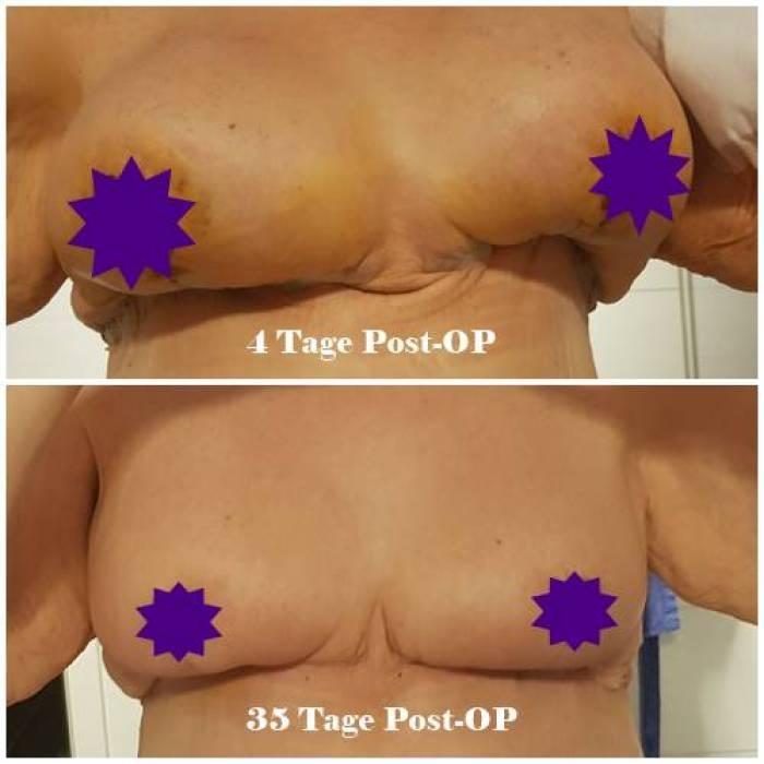 Bruststraffung-vorher nacher-Bruststaffung Bilder