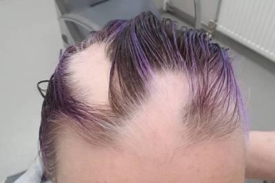 Alopecia areata-TriTec-Haarteil-kreisrunder Haarausfall
