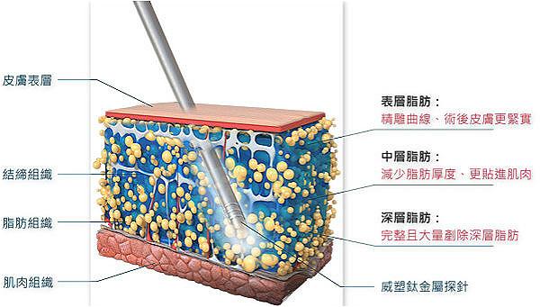 晴渼皮膚專科診所   VASER威塑抽脂 - 晴渼皮膚專科診所