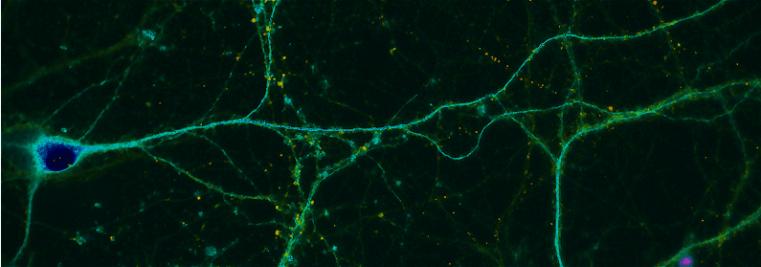 neuronlonggreen