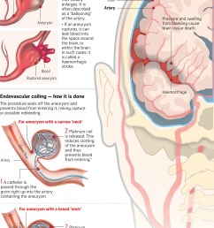 doctors told the straits times that the most important thing to do when a brain aneurysm ruptures is to try and seal it off  [ 1907 x 2952 Pixel ]