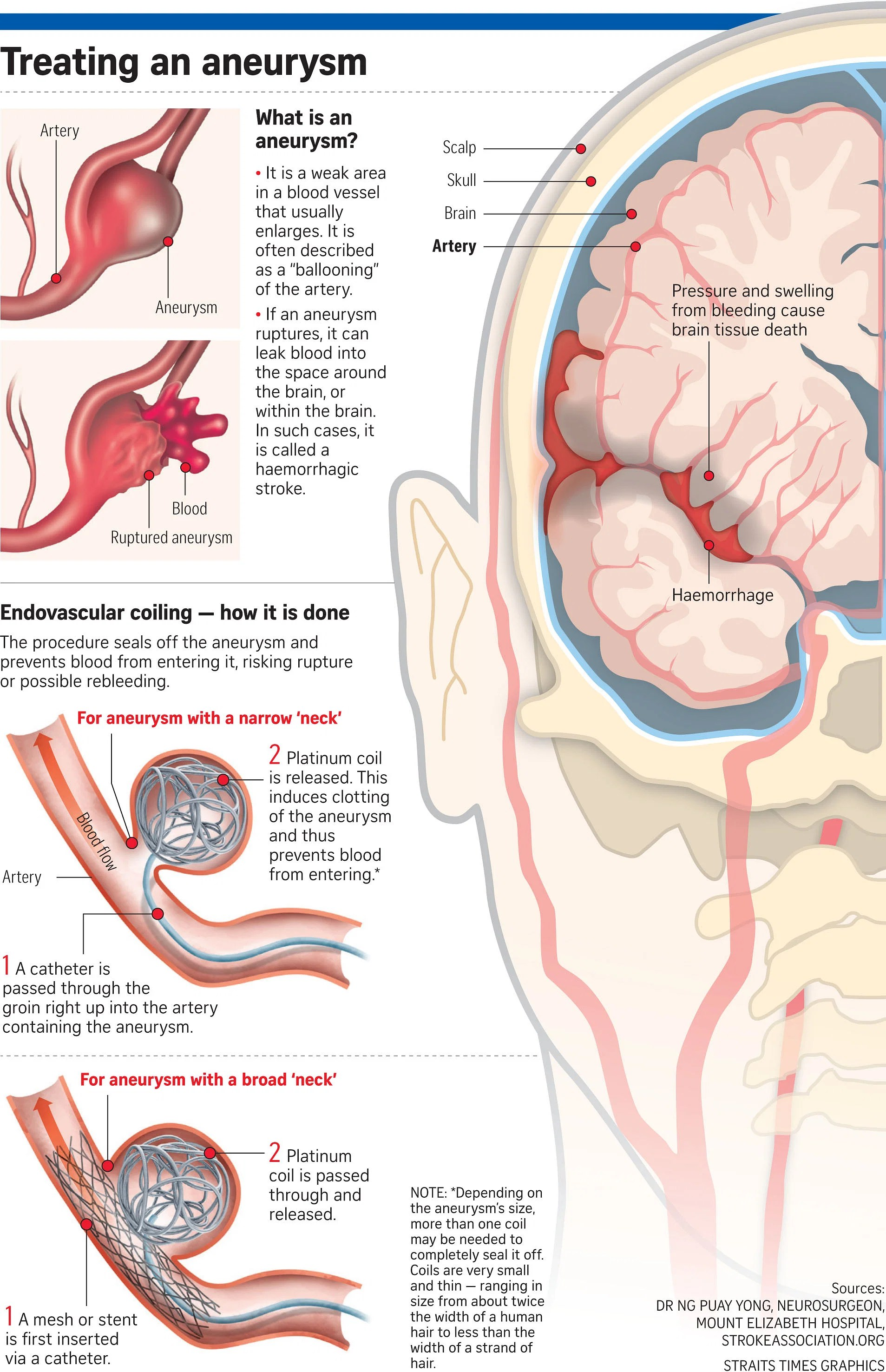 hight resolution of doctors told the straits times that the most important thing to do when a brain aneurysm ruptures is to try and seal it off