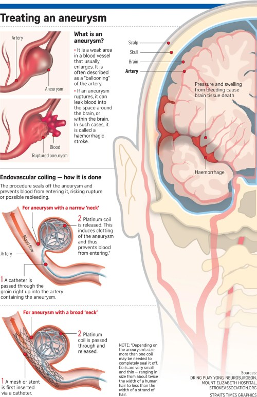 small resolution of doctors told the straits times that the most important thing to do when a brain aneurysm ruptures is to try and seal it off