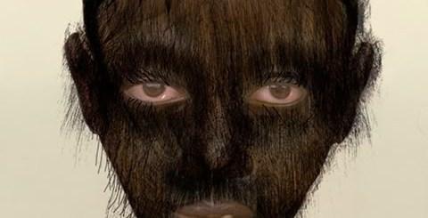 werewolf-syndrome-worlds-strangest-diseases