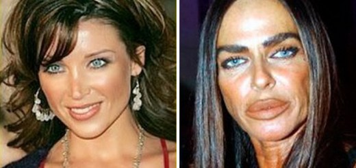 plastic surgery celebrity fails