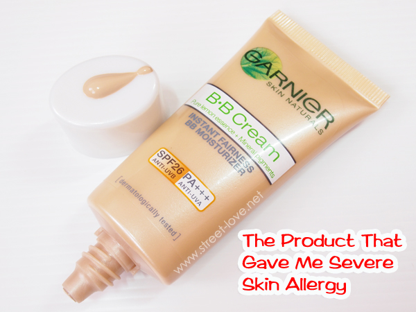 Skin Allergy1