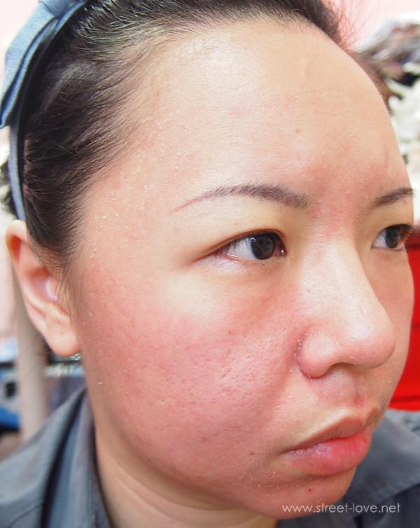 Skin Allergy4