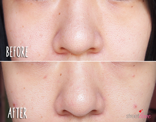 Yadah Deep Pore Cleansing Facial Brush Before and After