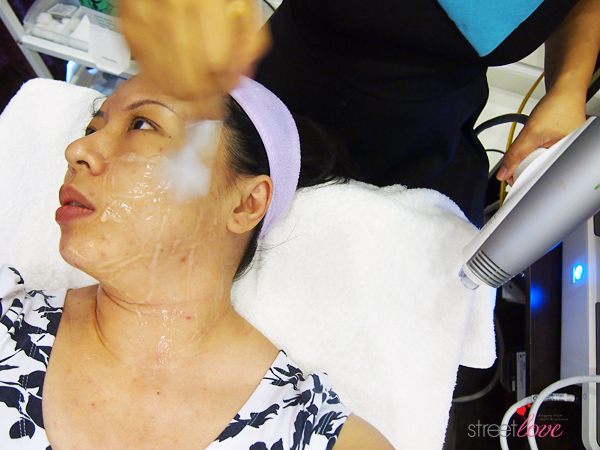 Renee Clinic Sublime Skin Contouring 11