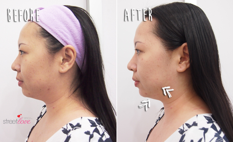 Renee Clinic Sublime Skin Contouring 18