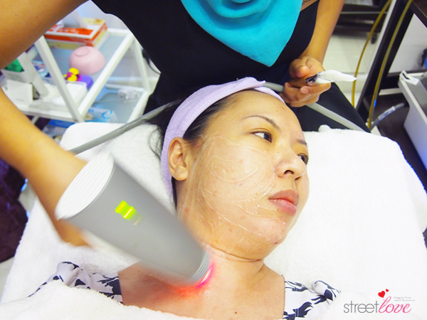 Renee Clinic Sublime Skin Contouring 8