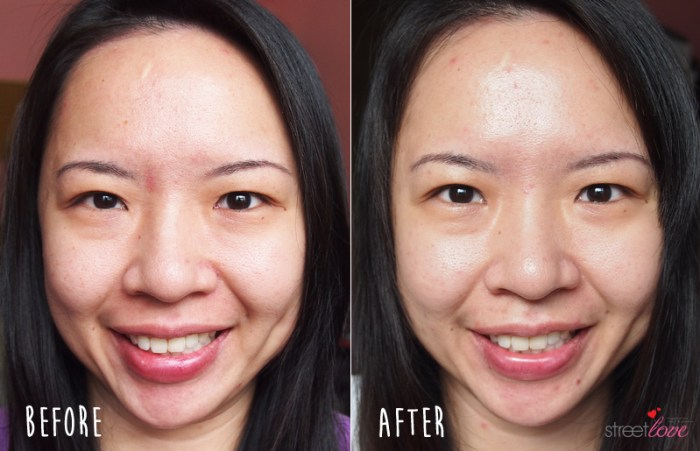 Black Silica Salt Before and After Full Face