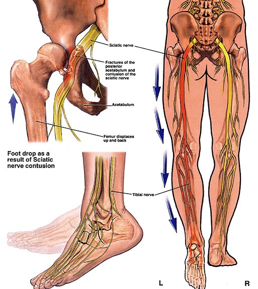 diagram of sciatic nerve pathway pontiac montana stereo wiring sciatica damage. | strive for good health
