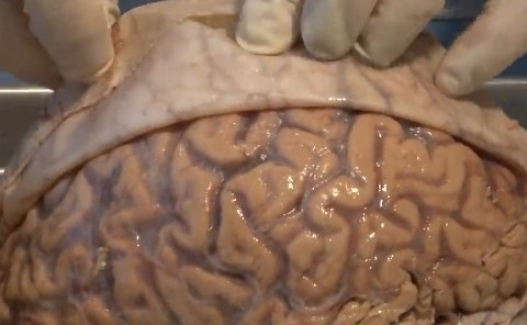 brain covers