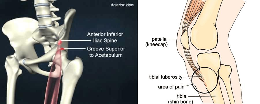 Rectus Femoris Origin and Insertion
