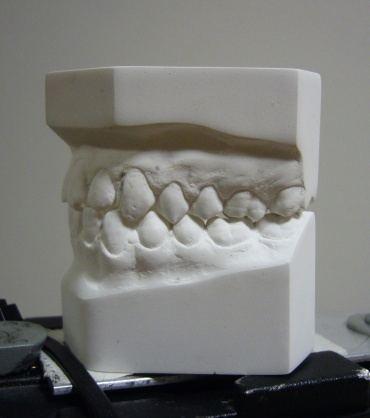 various_scans_teeth_1_orig.jpg
