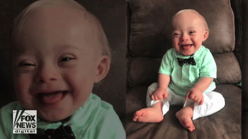 Invigorating Down Syndrome Original Gerber Baby Met Gerber