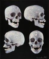 Damien Hirst, For the Love of God, 2007 Crâne en diamants : recouvert de platine et incrusté sur toute sa surface de 8601 diamants d'une valeur totale de 65 millions de livres (74 millions d'euros ou 106 millions de dollars américains). Visible sous de strictes conditions au White Cube de Londres.