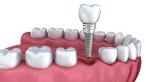impianto dentale operazione